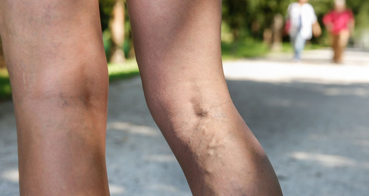 All you need to know about varicose veins